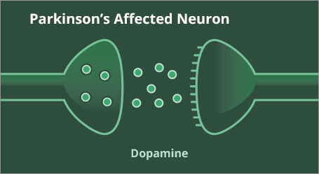 Dopamine levels in a Parkinson's affected neuron